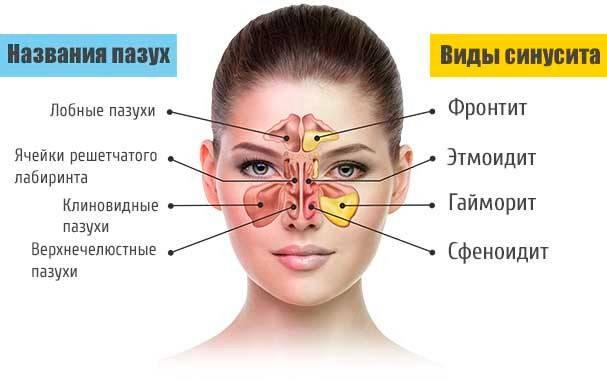 максиллярный синусит