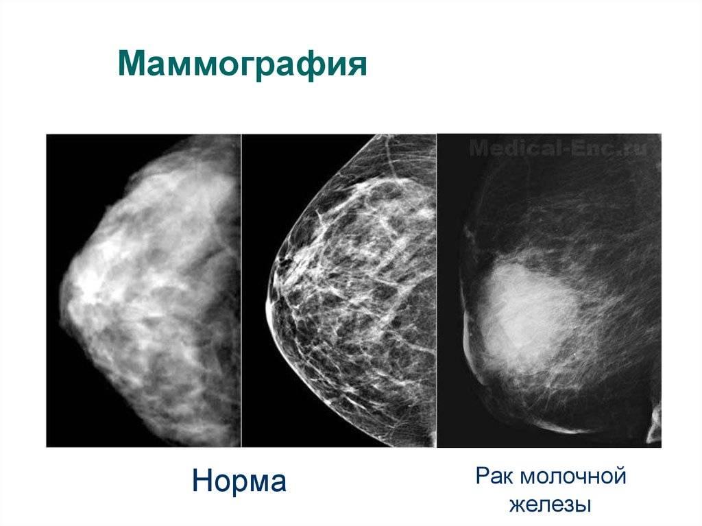 Со скольки лет можно делать маммографию