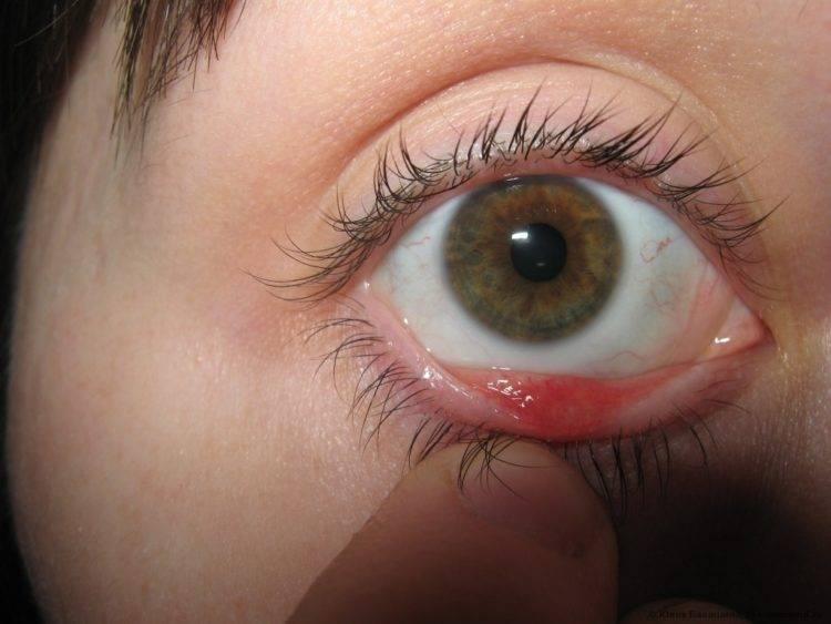 лечение халязиона в домашних условиях