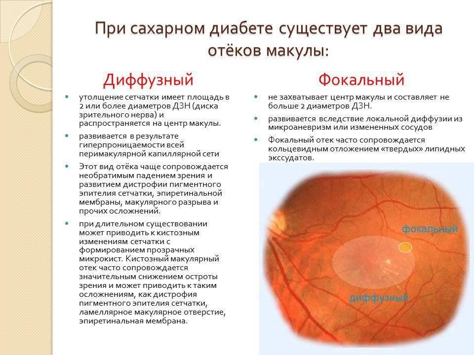 Скопление жидкости в полости глаза – отек сетчатки