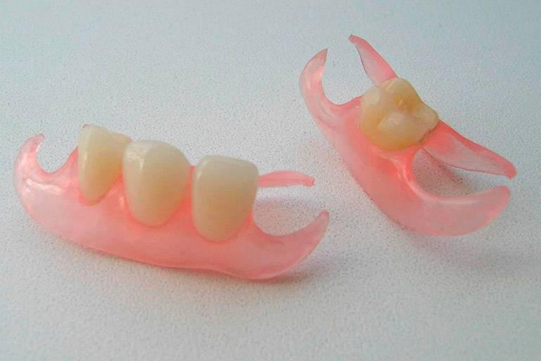 Нейлоновые зубные протезы: цена съемных протезов в москве