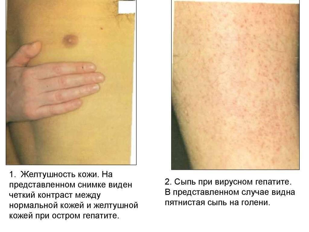 Первые признаки и симптомы при болезни печени у взрослыхдиагностика и лечение печени и желчного пузыря