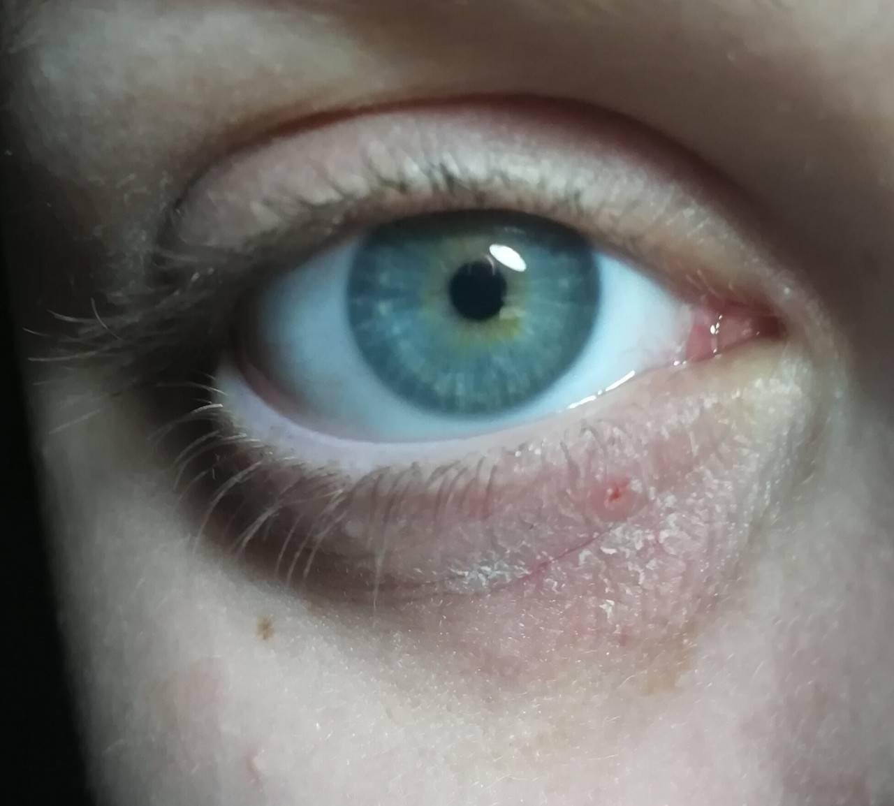Красно-синие точки вокруг глаз...??? - красные пятна под глазами у ребенка - запись пользователя ●•°вета°•● (kasate) в сообществе детские болезни от года до трех в категории высыпания на коже - babyblog.ru