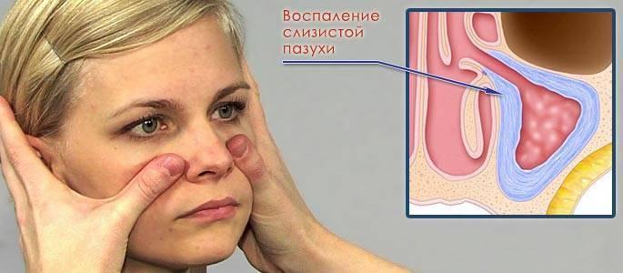 Боль в носу и болит лоб возле переносицы при нажатии, при этом нет насморка и температуры