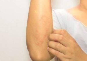 зуд кожи при заболевании печени