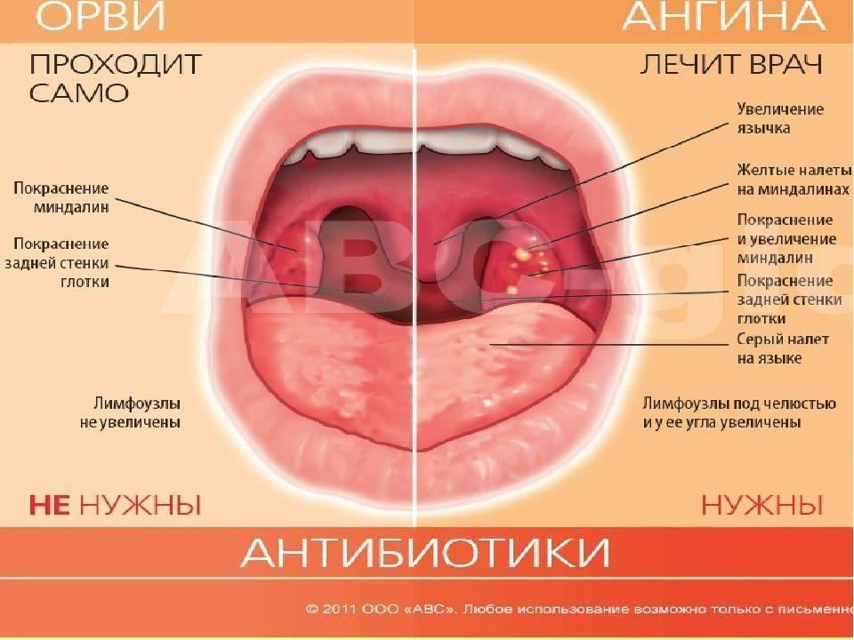 Горло болит без температуры: причины воспаления