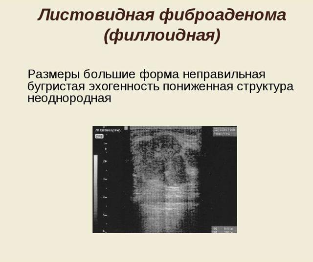 Инфильтрирующий дольковый рак молочной железы