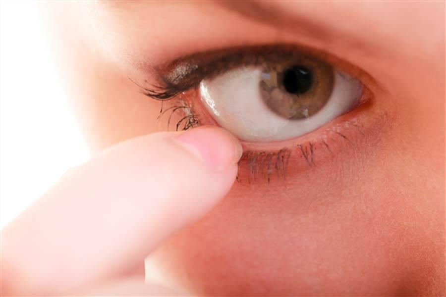 почему чешутся глаза в уголках у носа