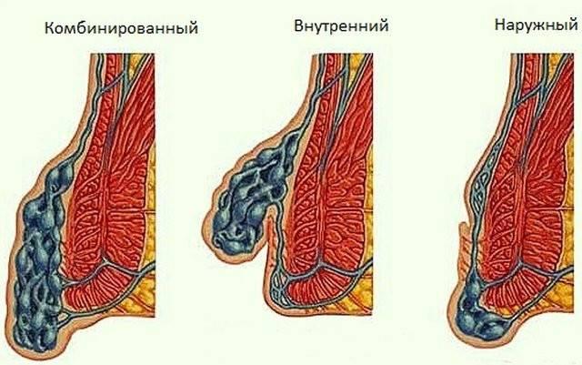 внешний геморрой лечение при беременности