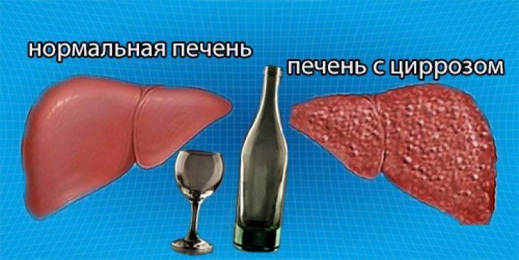 Алкогольный цирроз: что грозит больному?