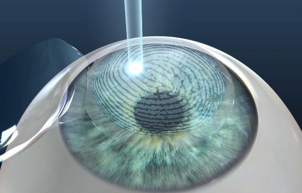 лазерная коррекция зрения противопоказания к операции