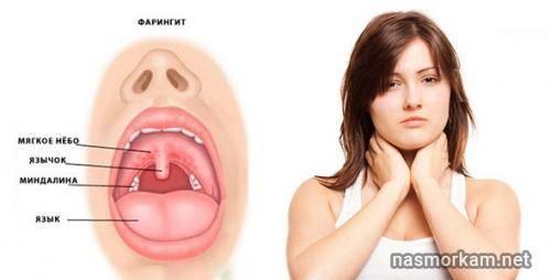 Болит ли горло при ангине