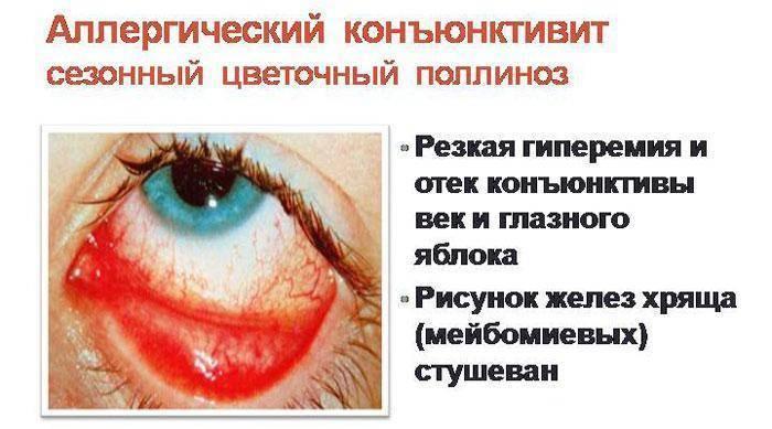 Лечение аллергического конъюнктивита - 15 эффективных глазных капель