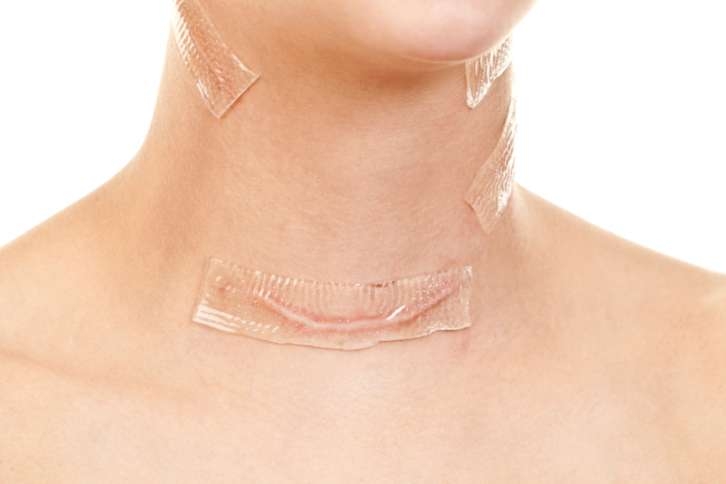 хирургические заболевания щитовидной железы