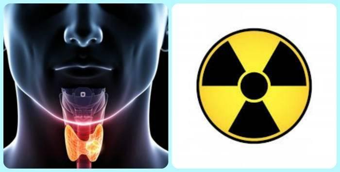 Радиоактивный йод лечение щитовидки | pro shchitovidku