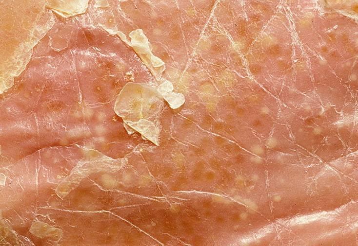 Псориаз на ладонях — лечение, фото