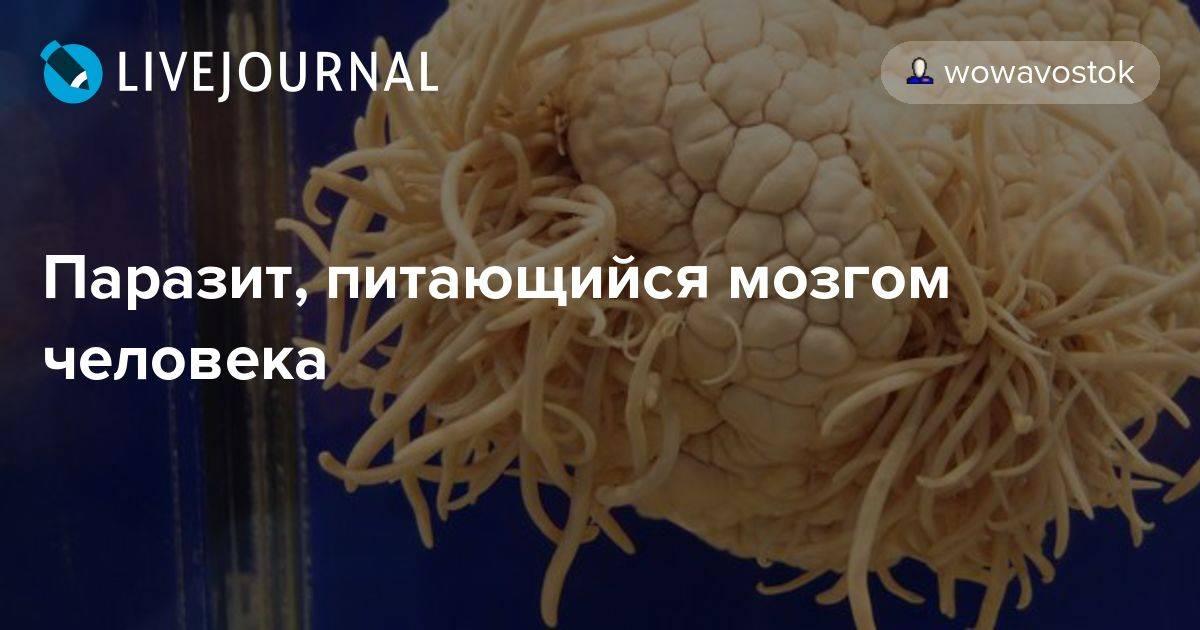 Какие бывают мозговые паразиты?
