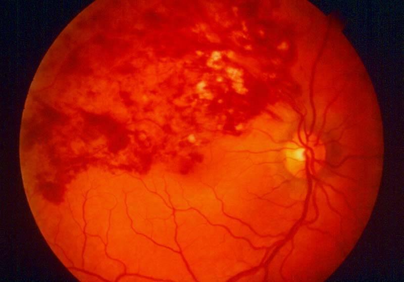 Тромбоз центральной вены сетчатки глаза лечение