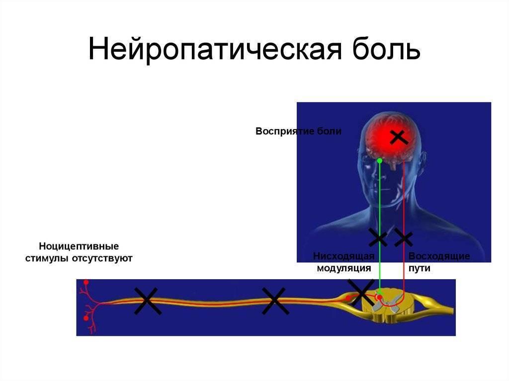 Нейропатические боли | что делать, если боль нейропатическая? | лечение боли и симптомы болезни на eurolab