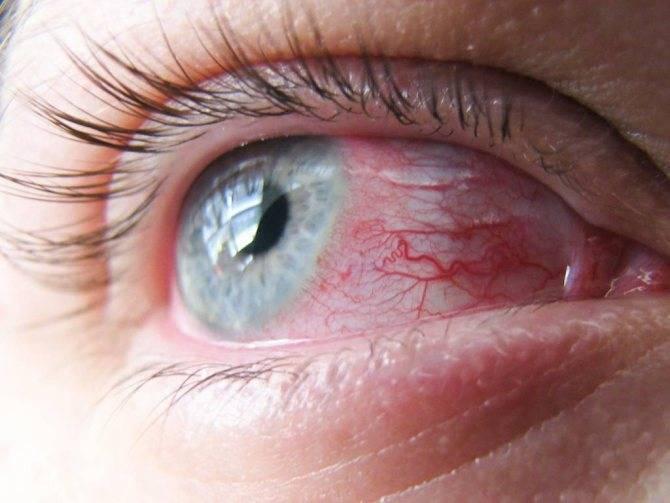 Самые частые причины красных глаз: диагностика и результативное лечение