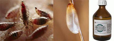 Как вывести керосином вшей и гнид