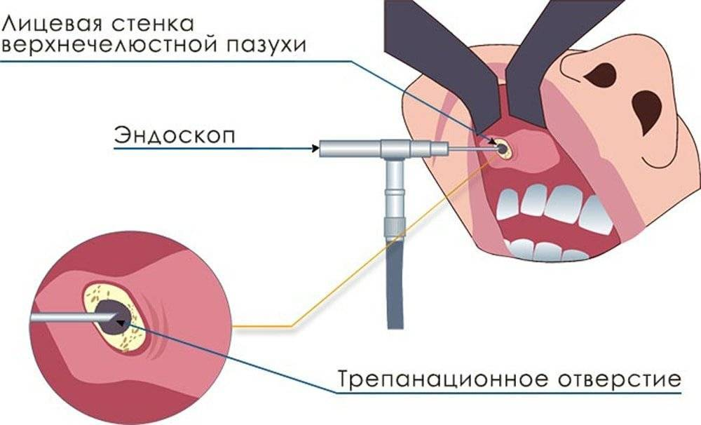 лечение кисты гайморовой пазухи без операции