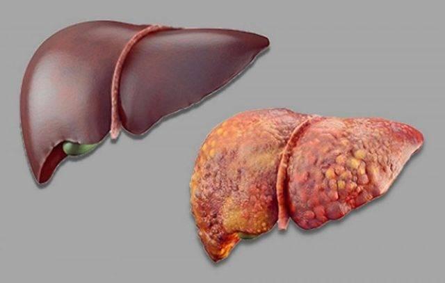 Токсический гепатит печени: острый, хронический, лекарственный, алкогольный