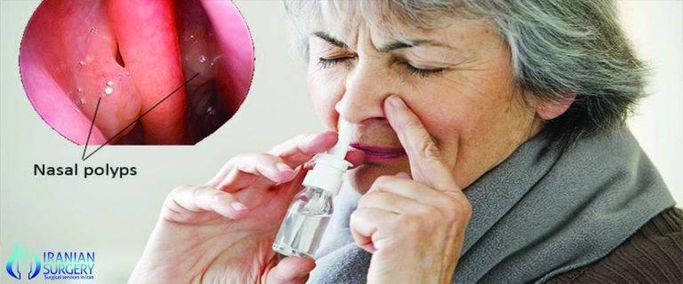 Избавление от полипов в носу при помощи народных рецептов