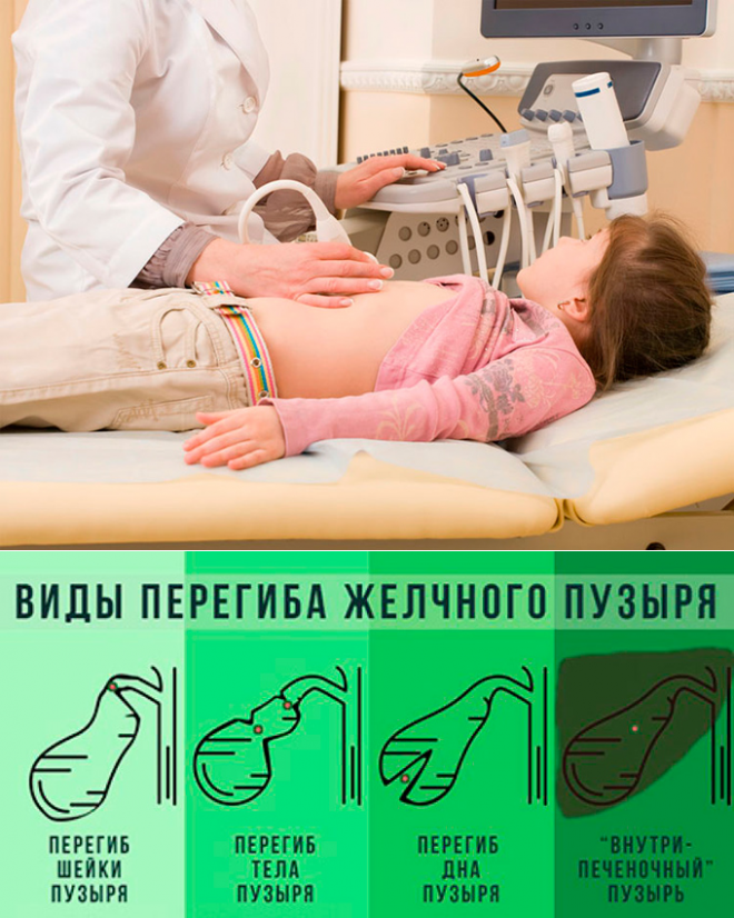 врожденный перегиб желчного пузыря симптомы и лечение