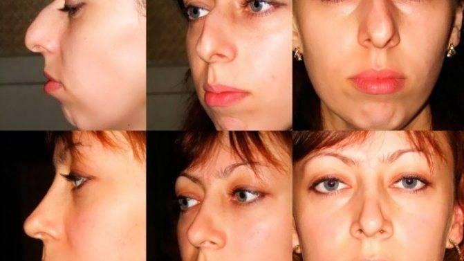 Операция по уменьшению носа: крыльев, кончика, как делают, фото до и после