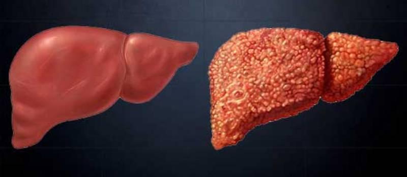 как болит печень при гепатите с