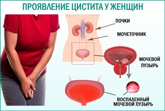 чем лечить цистит при кормлении