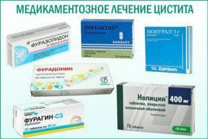 Лекарство от цистита у женщин: медикаментозная терапия против воспалительного процесса