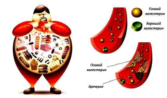 Пониженный холестерин в крови у женщин
