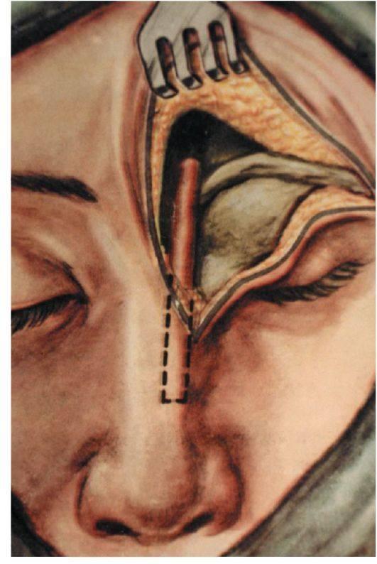 Пункция лобной пазухи