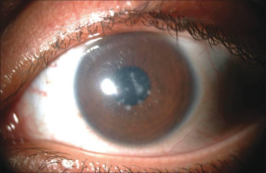 Помутнение роговицы глаза (лейкома, бельмо): не затягивайте визит к офтальмологу!