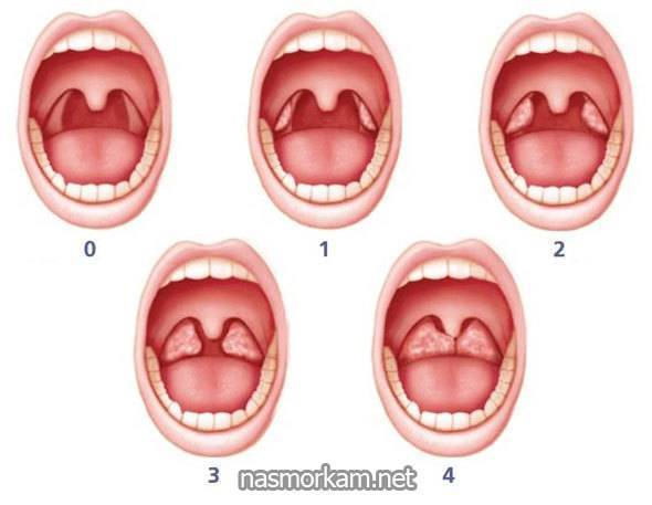 Причины и лечение воспаления горла и гортани