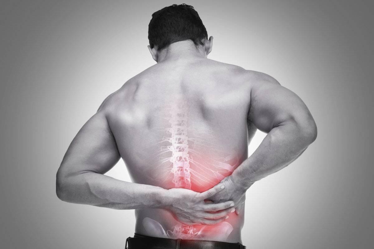 Как лечить мышечную невралгию