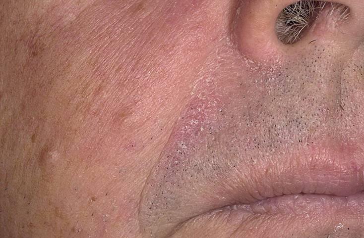 Лечение себореи кожи головы: что назначают врачи, и что применяют в народе
