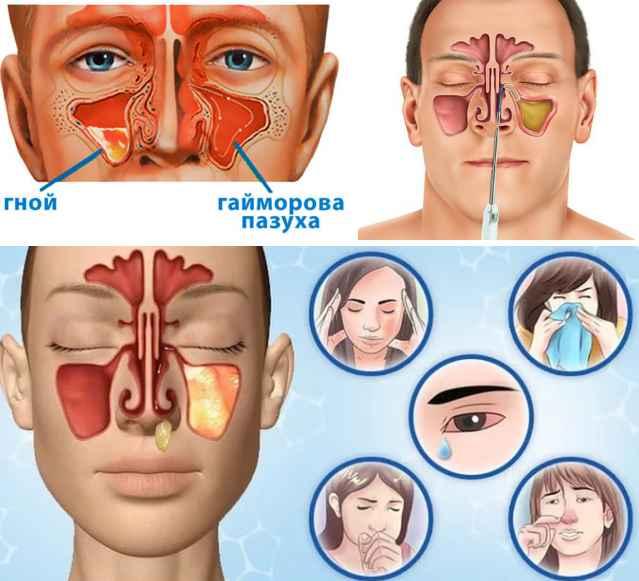 Воспаление носовых пазух: симптомы и лечение. все способы терапии