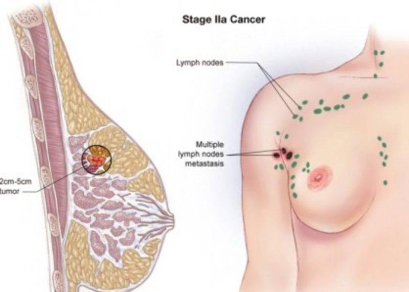 опухоль в груди у женщин