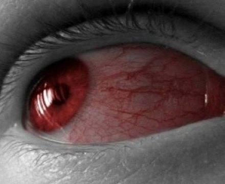 Почему могут болеть глаза после бани