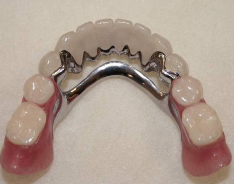 Шинирующий бюгельный протез – восполнить недостаток зубов и защитить имеющиеся от расшатывания
