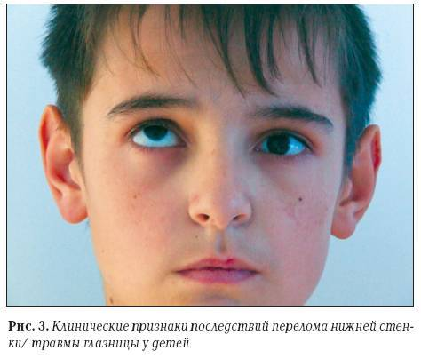 Симптомы перелома носа у ребенка и первая помощь при травме