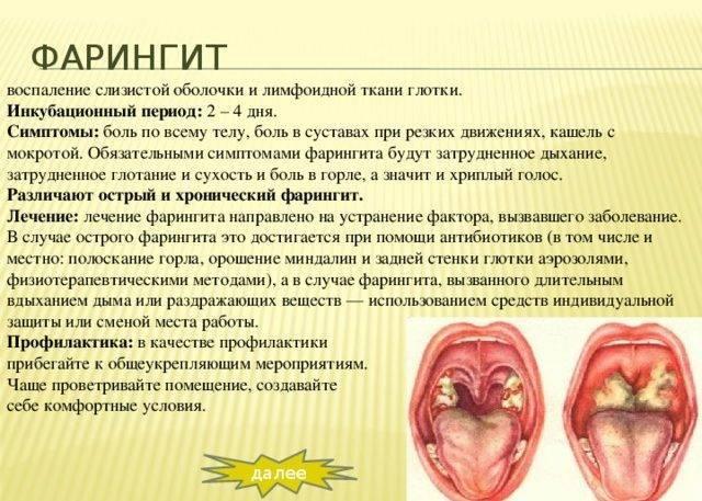Ларингит при беременности: как и чем лечить на разных сроках, последствия