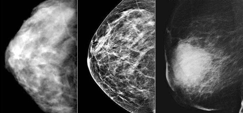 что лучше маммограмма или узи молочных желез
