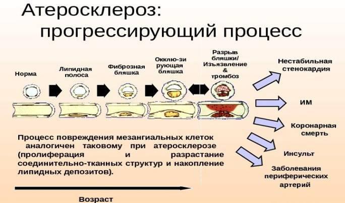 Атеросклероз сосудов шейного отдела позвоночника симптомы