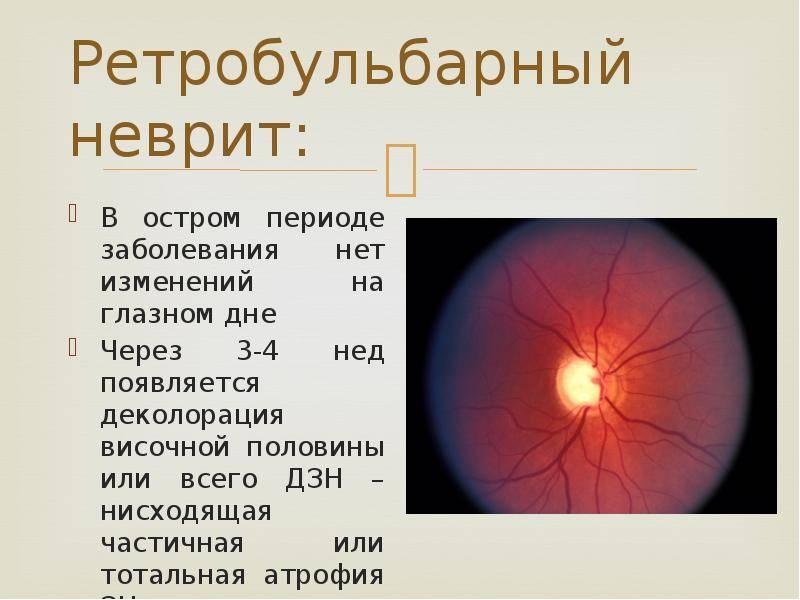 неврит зрительного нерва это