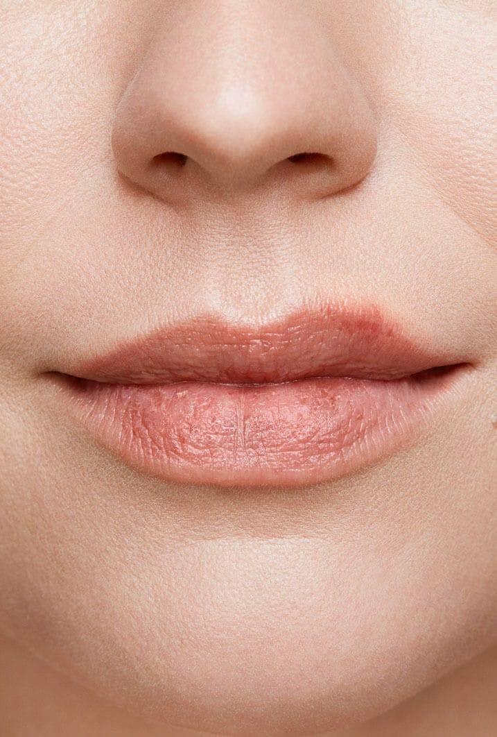 симптомы герпеса на губах у женщин