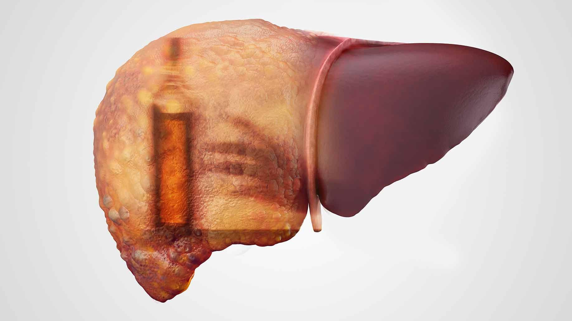 Алкогольный гепатит, предвестник цирроза: как распознать и вылечить